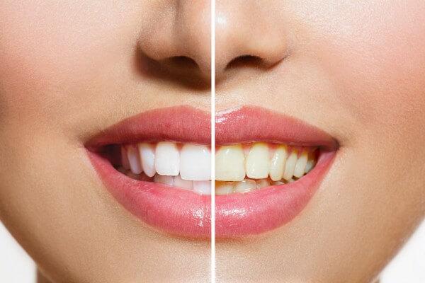 Blanqueamiento | Antes y después del tratamiento